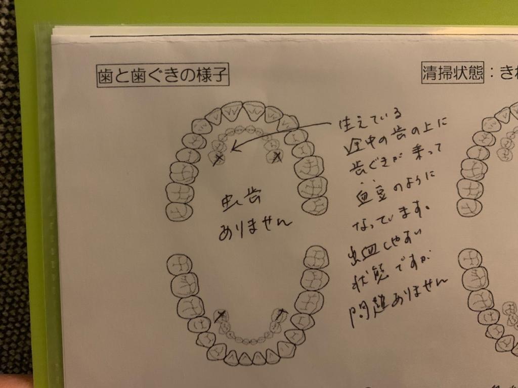 歯医者さんからもらったメモ
